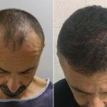 Do Hair Transplants Work? Types, Side Effects, And Recovery